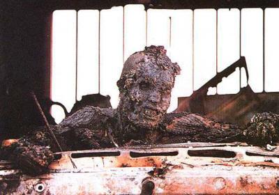 Burned-Man-at-IrakWar_k