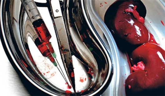 Organ-Entnahme an lebenden Menschen und Widerspruchslösung